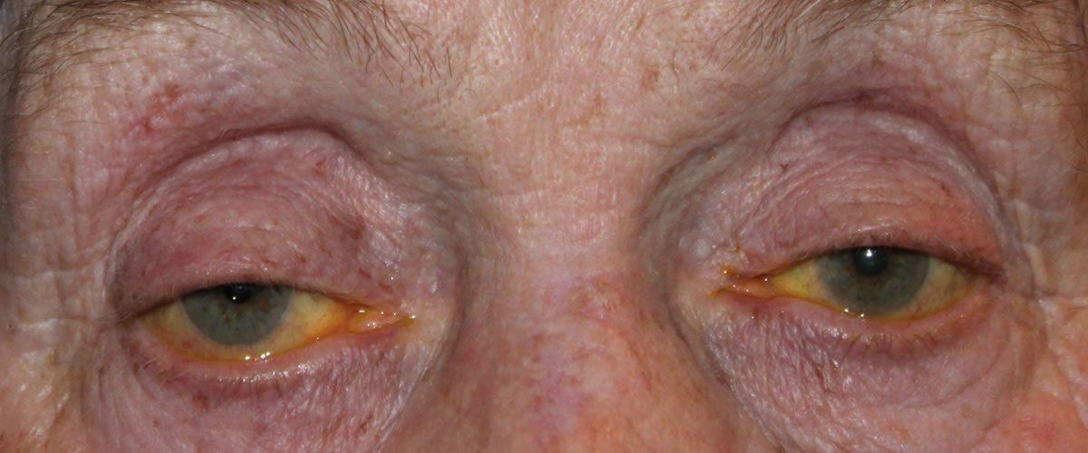 Oculoplastic Surgery Limerick